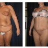 Lipo-Abdominoplasty 24 - Side View