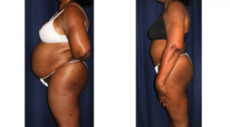 Lipo-Abdominoplasty 25 - Side View