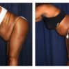 Lipo-Abdominoplasty 25 - Side View - Bending