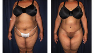 Lipo-Abdominoplasty 26 - Front View