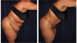 Lipo-Abdominoplasty 26 - Side View