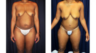 Lipo-Abdominoplasty 28 - Front View