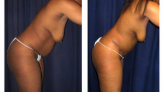 Lipo-Abdominoplasty 28 - Side View
