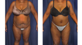 Lipo-Abdominoplasty (Girth) 12 - Front View