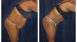 Lipo-Abdominoplasty (Girth) 13 - Side View