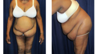 Lipo-Abdominoplasty (Staged) 1 - Pre-Operation