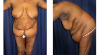 Lipo-Abdominoplasty (Staged) 1 - After Surgery #1