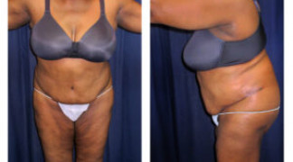 Lipo-Abdominoplasty (Staged) 1 - After Surgery #2