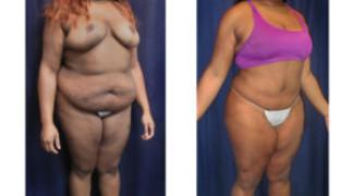 Lipo-Abdominoplasty (Cosmetic) 14 - Profile