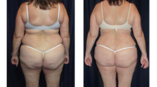 Lipo-Abdominoplasty (Cosmetic) 15 - Back View