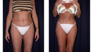Lipo-Abdominoplasty 3 - Front View