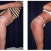Lipo-Abdominoplasty 3 - Side View - Bending