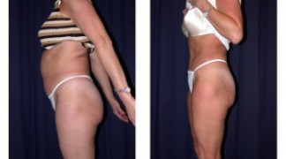 Lipo-Abdominoplasty 3 - Side View - Standing