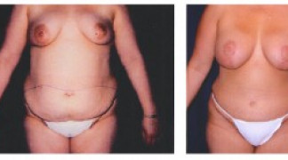 Lipo-Abdominoplasty 4 - Front View