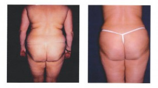 Lipo-Abdominoplasty 4 - Back View