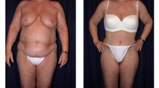 Lipo-Abdominoplasty 5 - Front View