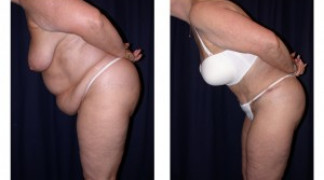 Lipo-Abdominoplasty 5 - Side View - Bending
