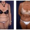 Lipo-Abdominoplasty 6 - Front View
