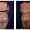 Lipo-Abdominoplasty 6 - Back View