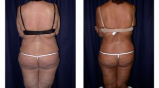 Lipo-Abdominoplasty 6 - Back View
