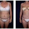 Lipo-Abdominoplasty 7 - Front View