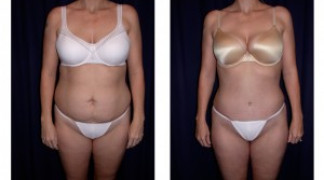Lipo-Abdominoplasty 7 - Front View