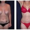 Lipo-Abdominoplasty 8 - Front View