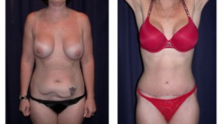 Lipo-Abdominoplasty 8 - Front View