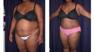 Lipo-Abdominoplasty 9 - Profile