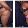 Lipo-Abdominoplasty 9 - Side View - Bending