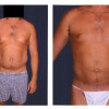 Liposuction1 - Male - Front View