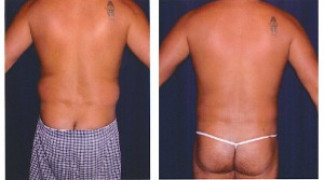 Liposuction 1 - Male - Back View