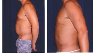Liposuction 1 - Male - Side View