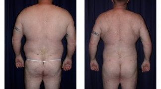Liposuction 2 - Male - Back View