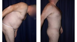 Liposuction 2 - Male - Side View