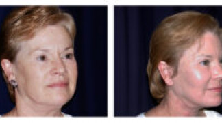Before and After - MACS Lift / Fat Grafting 2 - Profile