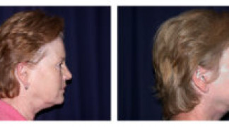 Before and After - MACS Lift / Fat Grafting 2 - Side View