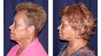 Before and After - MACS Lift / Fat Grafting 4 - Profile