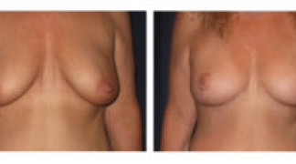 Mastopexy / Breast Lift 1 - Front View