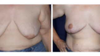Mastopexy / Breast Lift 2 - Front View
