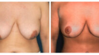 Mastopexy / Breast Lift 3 - Front View
