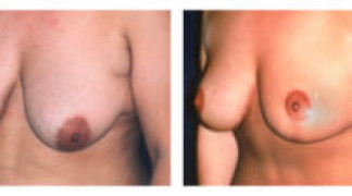 Mastopexy / Breast Lift 3 - Profile