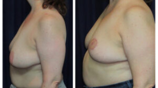 Mastopexy / Breast Lift 5 - Side View