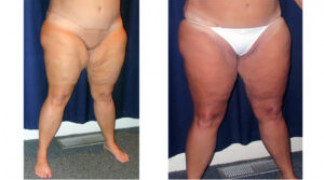 Medial Thigh Lift 1 - Front View - Profile Left