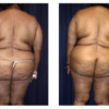 Mommy Makeover 7 - Back View - Before and After Surgery Two