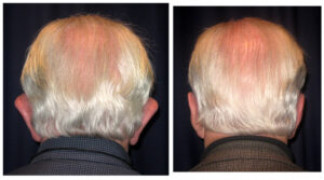 Before and After - Otoplasty 2 - Back View - Back View