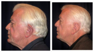 Before and After - Otoplasty 2 - Side View