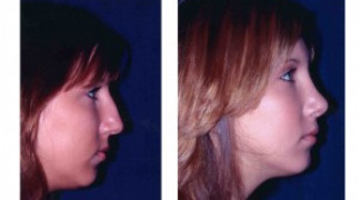 Before and After - Rhinoplasty 1 - Side View