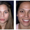 Before and After - Rhinoplasty 2 - Front View