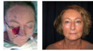 Before and After - Skin Cancer Patient 15 - Front View